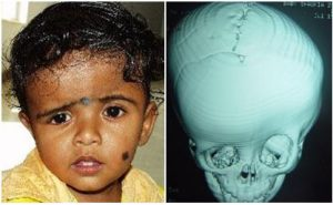 skull deformities inga health foundation